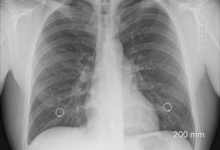 Plămâni afectați