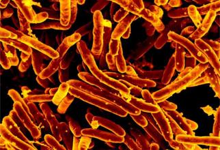 Bacteria mycobacterium tuberculosis, tuberculoza. sursa: niaid.nih.gov