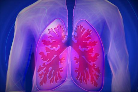 Românii care au nevoie de plămâni noi vor fi transplantați în Ungaria