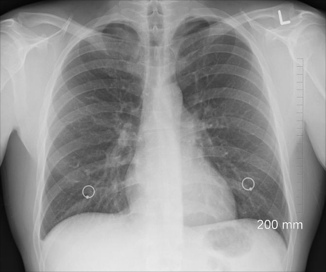 pneumonia provoacă să pierdeți în greutate