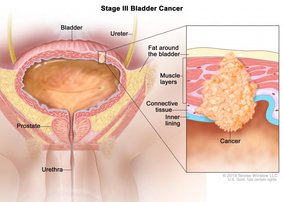 Cancer de vezica.         FOTO: Terese Winslow/NIH