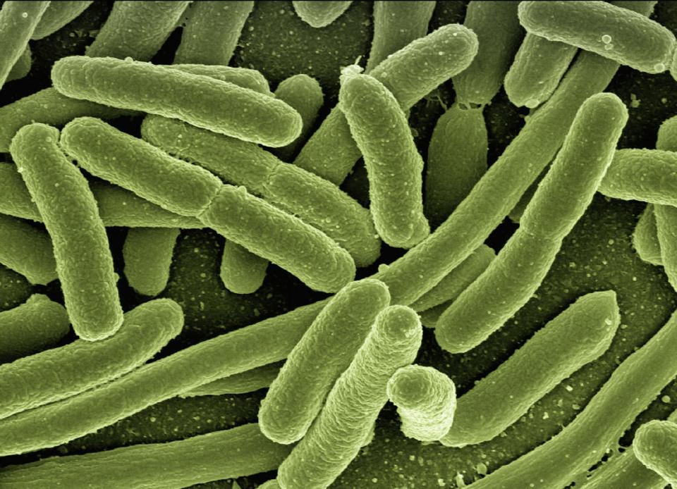 Infecția cu listeria poate fi mortală