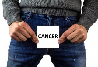 Cancerul de prostată poate fi tratat eficient