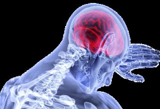 Scleroza multiplă este o boală autoimună, cronică, ce afectează sistemul nervos central