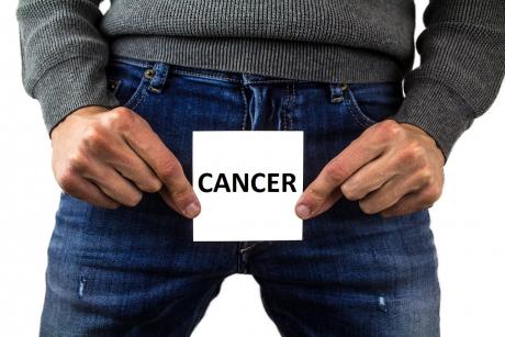 cel mai bun tratament pentru cancer prostata