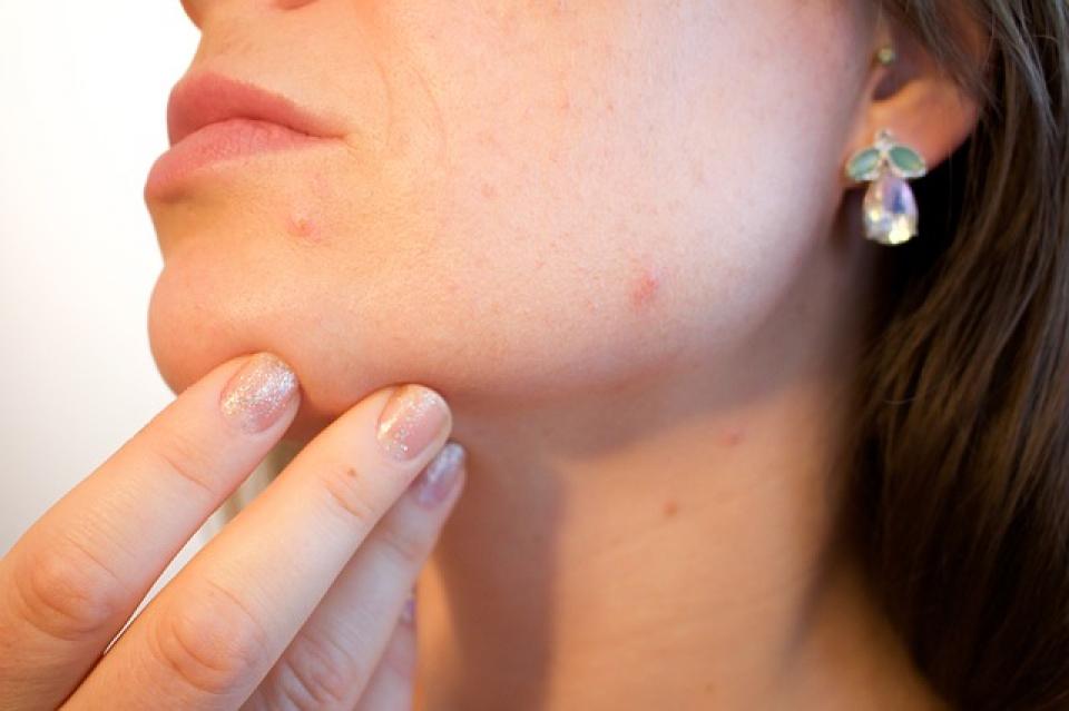 Câteva reguli simple ne pot scăpa de acnee
