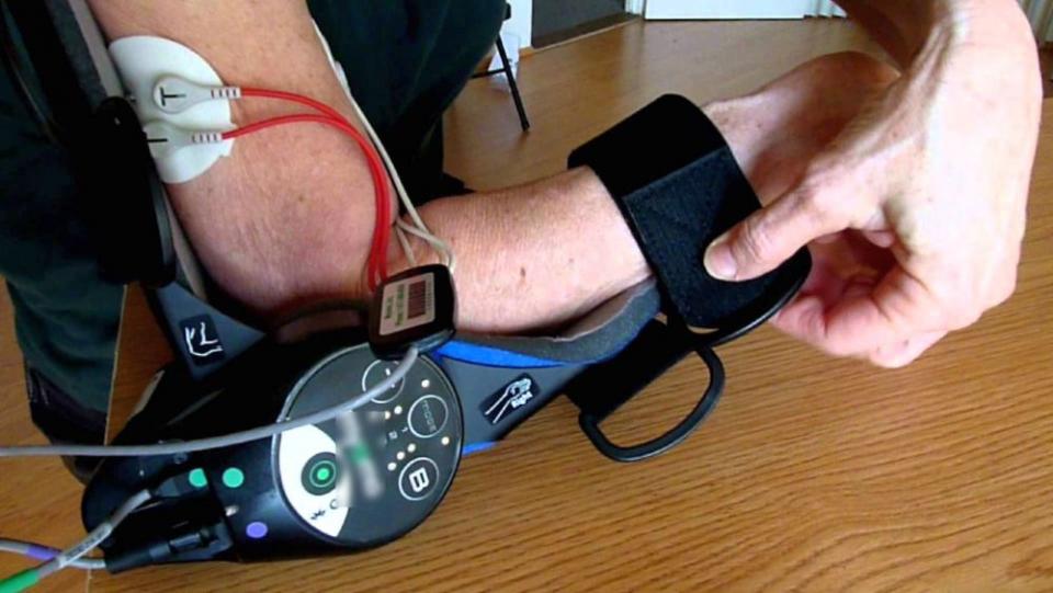 Braț robotic, pacient cu AVC. FOTO: YOUTUBE.COM