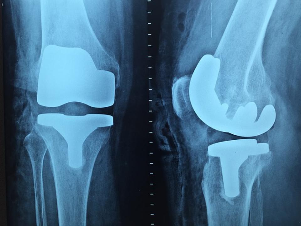 Instabilitatea genunchiului poate avea nevoie de intervenție chirurgicală