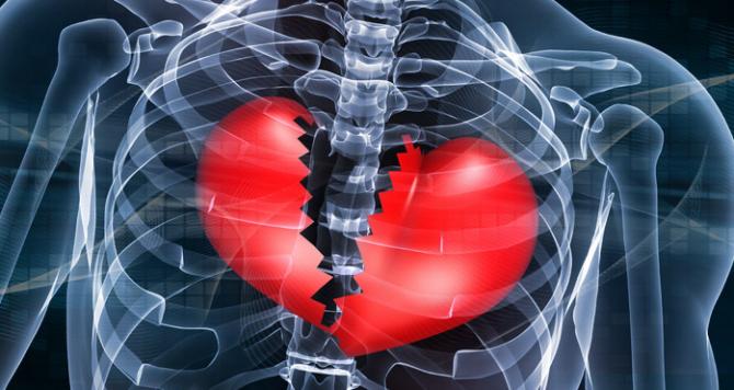Infarctul miocardic vine cu simptome destul de evidente