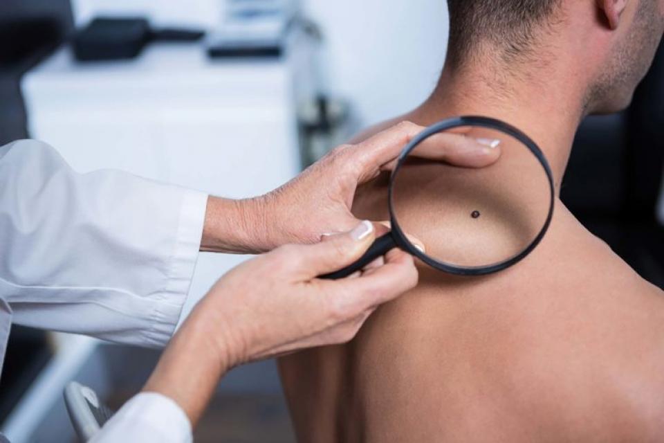 Melanomul malign are un risc mai mare de metastază în funcție de locul unde este amplasat
