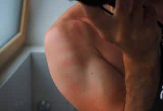 O iritatie de la transpiratie se poate transforma în eczema