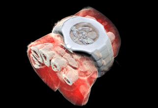 Așa arată încheietura unei mâini, cu tot cu ceas, scanată cu noul aparat. Foto: MARS Bioimaging LTD