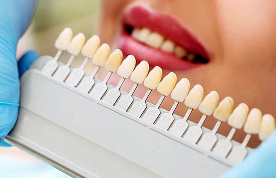 Benzile de albire pot deteriora dinții, dacă sun folosite în exces