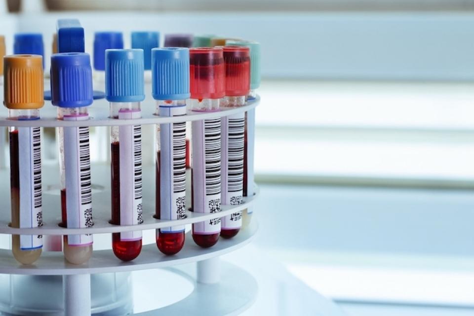 Anemia are cauze precum lipsa fierului și manifestări din cele mai ciudate