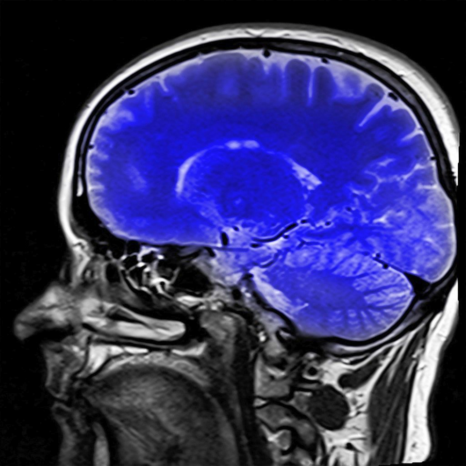"""Accidentul vascular cerebral """"silențios"""""""