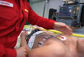 O simpla electrocardiograma nu e suficientă pentru a stadili dacă pacientul are sau nu insuficienta cardiaca