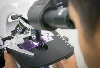Romanul pregatise cateva lame pentru microscop, dar a plecat in concediu si a uitat de ele