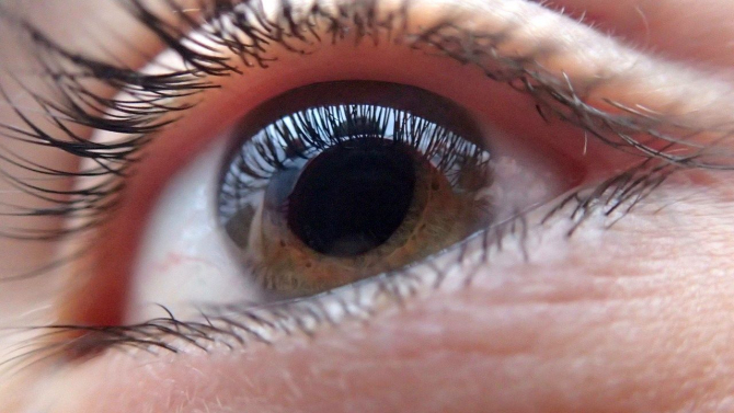 viziune cercuri negre în ochi)
