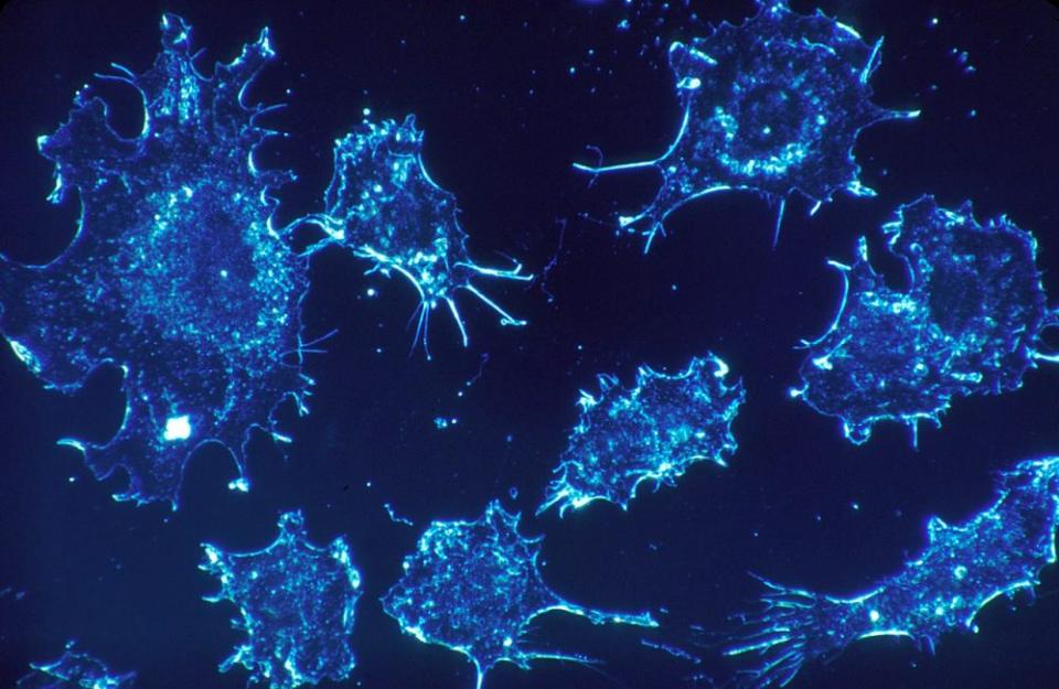 Clamydia se leagă de membrana celulei