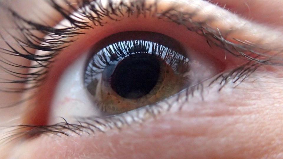 Colesterolul mărit poate afecta vederea