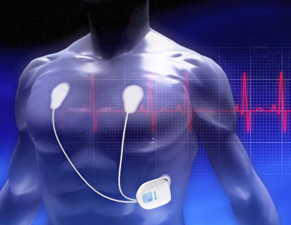 Holterul înregistrează tensiunea pe o durată de 24 de ore. FOTO: Intelesens/Zensor