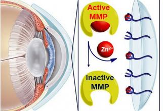 Hidrogelul transformat in lentilă blochează ionii de zinc. Foto: UNH/UCD