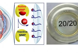 Cercetătorii de la Universitatea din New Hampshire au creat un hidrogel care, într-o bună zi, poate fi transformat într-o lentilă de contact pentru a trata topirea corneei.  Foto: UNH/UCD