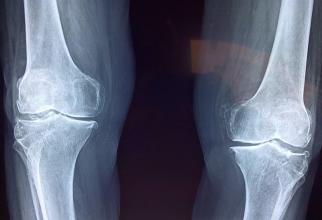 Cartilajul articulatiilor s-ar putea regenera