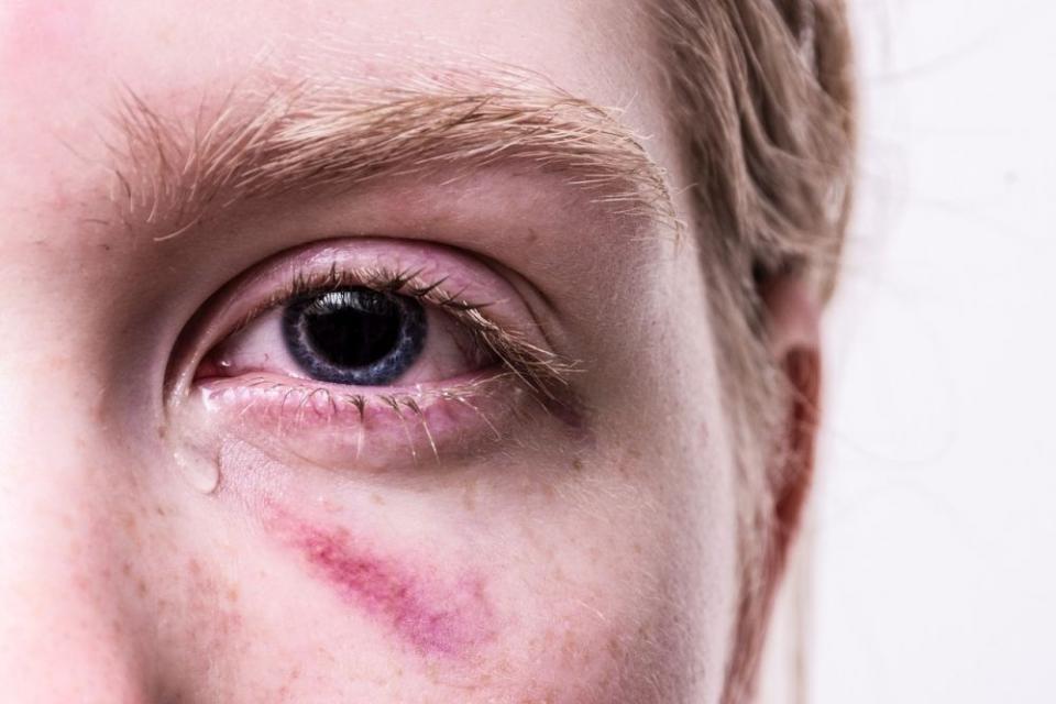 Când lacrimile nu sunt de bună calitate, ochii se pot usca chiar dacă lăcrimați abundent