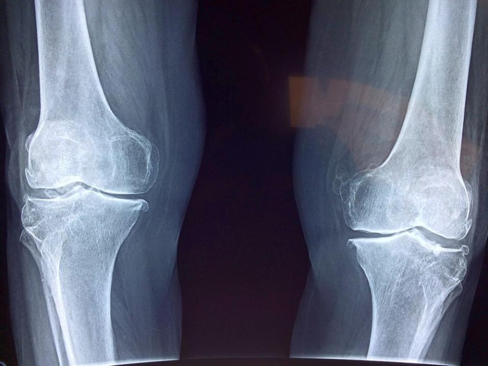 Radiografia la genunchi, suficientă pentru diagnostic în majoritatea cazurilor