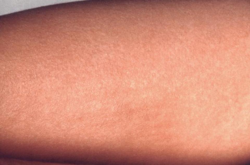 Când ai scarlatină pe piele apar multe bubițe mici și pielea este iritată. FOTO: CDC