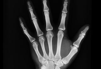 Osteoporoza are terapie  Foto: pexels.com
