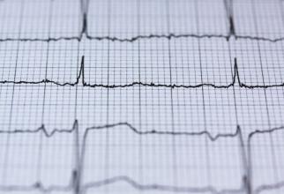 Boli cardiovasculare     FOTO: pexels.com