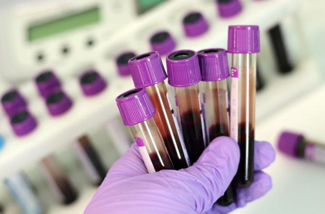 Test de sânge