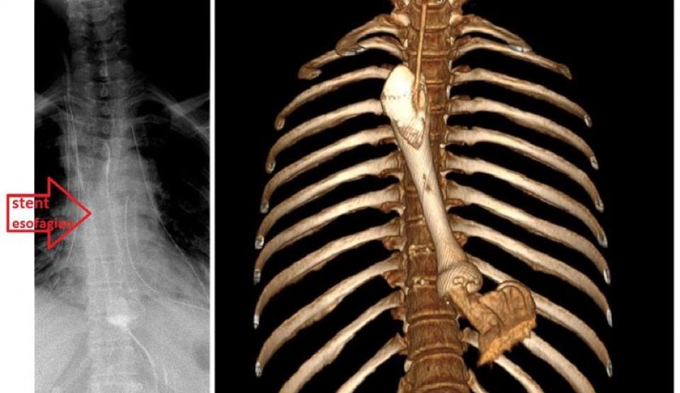 Un proces de mediastinotomie s-a efectuat la un caz complicat  FOTO: Facebook SUUB