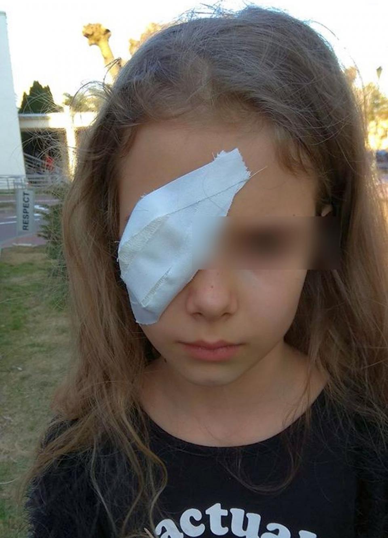 Fetița în vârstă de 8 anișori a ajuns de două ori la spital, după ce un coleg de joacă a lovit-o în ochi cu un băț. Foto Lucian Băltaru / Facebook
