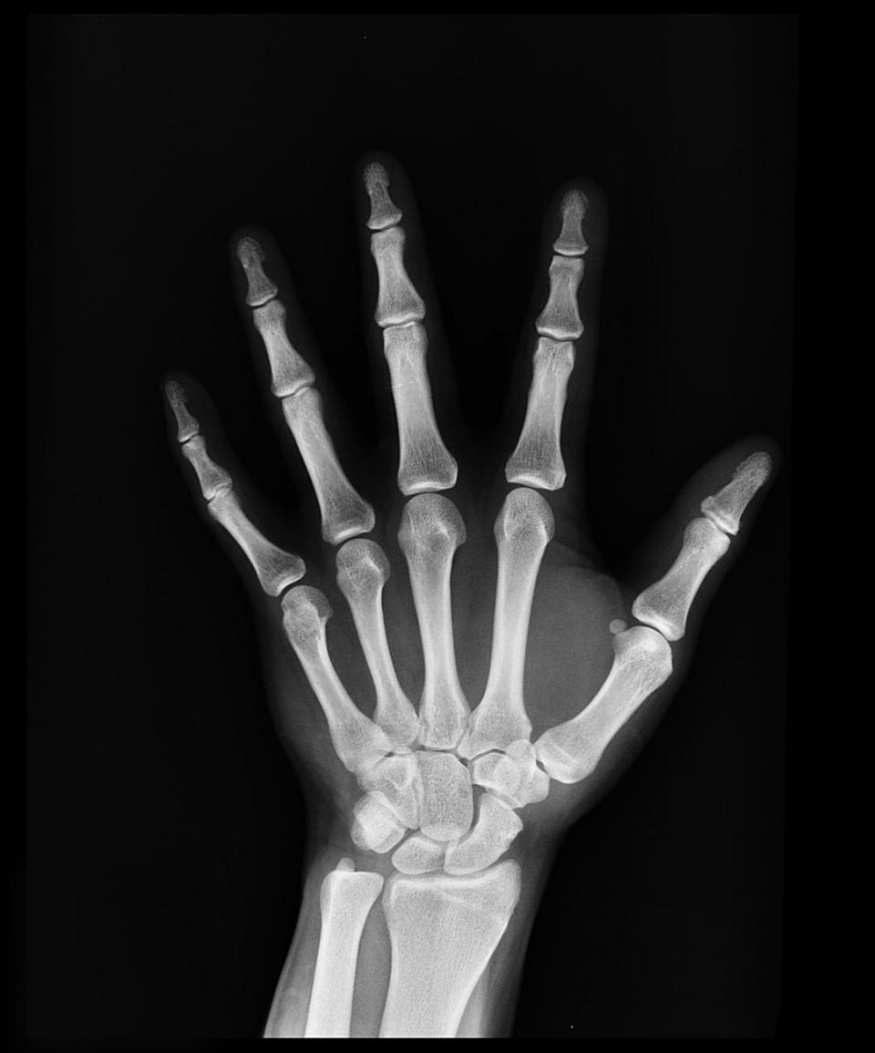 tratamentul pentru osteoporoză te ajută să trăiești mai mult  Foto: pexels.com