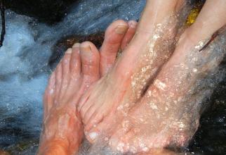 Unghiile de la picioare, dacă își schimbp culoarea, pot fi semne ale unor boli grave