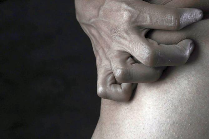Boli autoimune: Artrita deformează articulațiile și dă mari dureri, dar aceste anu sunt legate de ploaie, sau de vreme în general