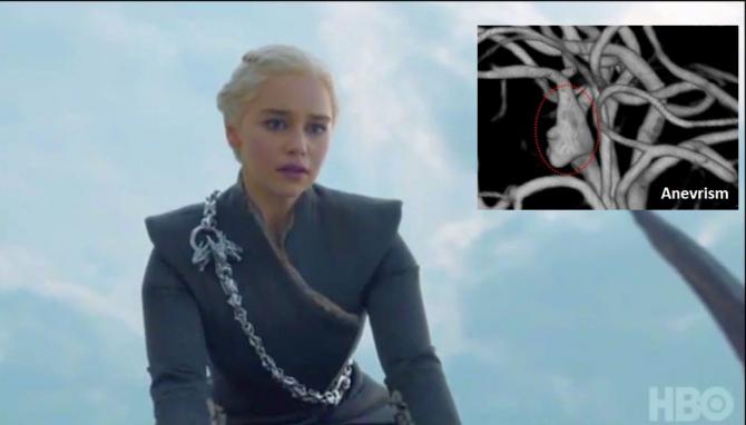Cunoscuta actriță a avut două anevrisme cerebrale și a fost operată