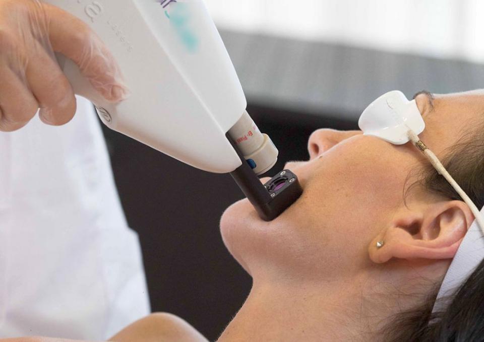 La adulți cu acnee, tratamentul cu laser dă cele mai bune rezultate