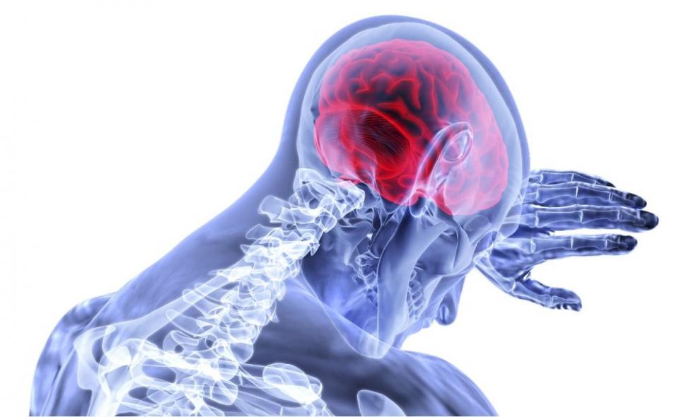 Ruperea unui anevrism înseamnă accident vascular cerebral