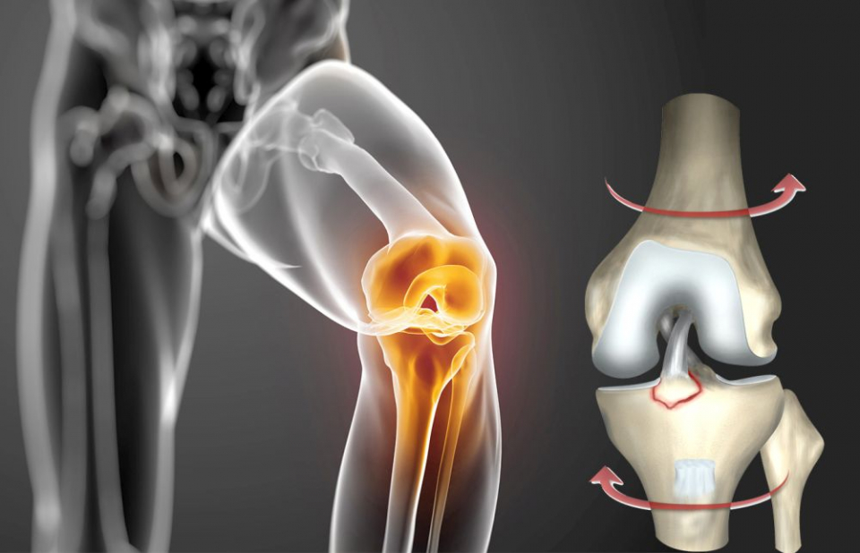 Sportiv sau nu, rupturi de ligamente putem face cu toții, mecanismul fiind același: de torsiune. Foto: Sanador