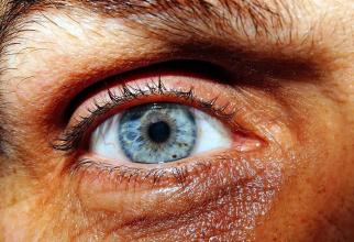 Apariția unui cerc gri în jurul irisului poate fi semn de boli cardiovasculare