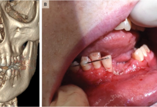 O țigaretă electronică i-a distrus unui adolescent mandibula  FOTO: The New England Journal of Medicine
