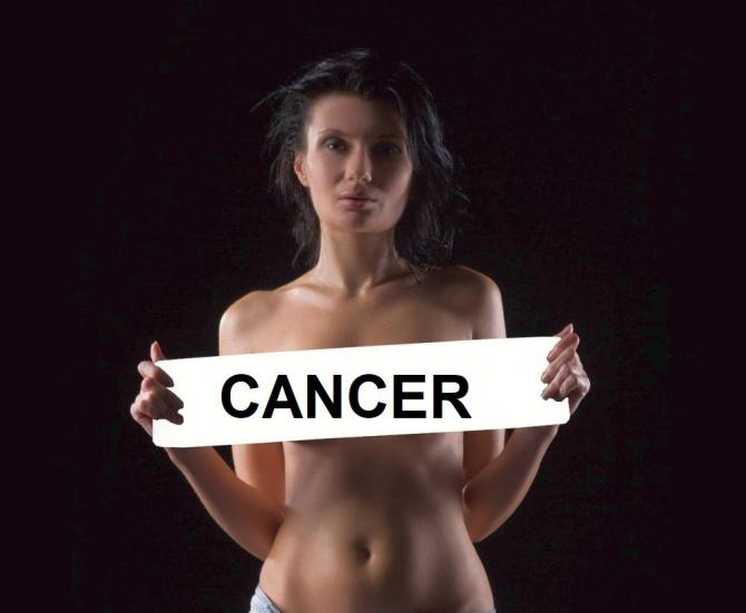 Cancerul de sân. Foto: Pixabay