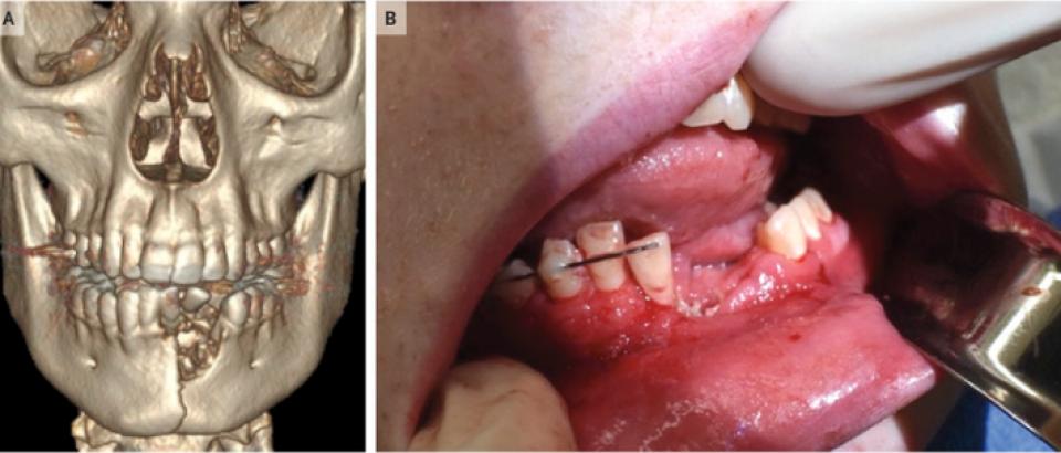 O țigaretă electronică i-a distrus unui adolescent mandibula  FOTO: The New England Journal of Medicine