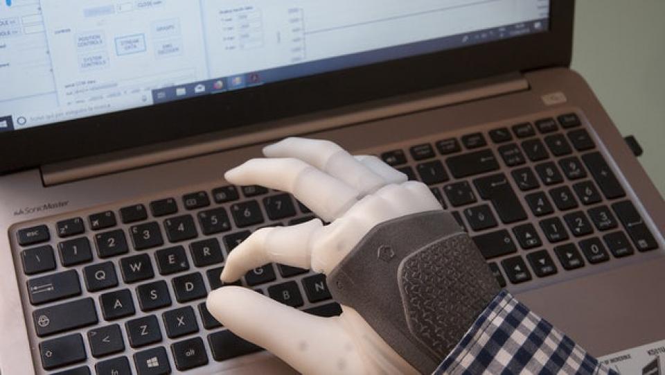 Proteza va putea fi controlată de creier   Foto: newatlas.com