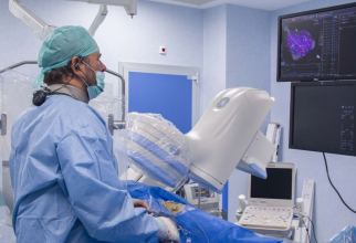 Ablația este o intervenție chirurgicală minim-invazivă, după care pacientul se recuperează foarte repede