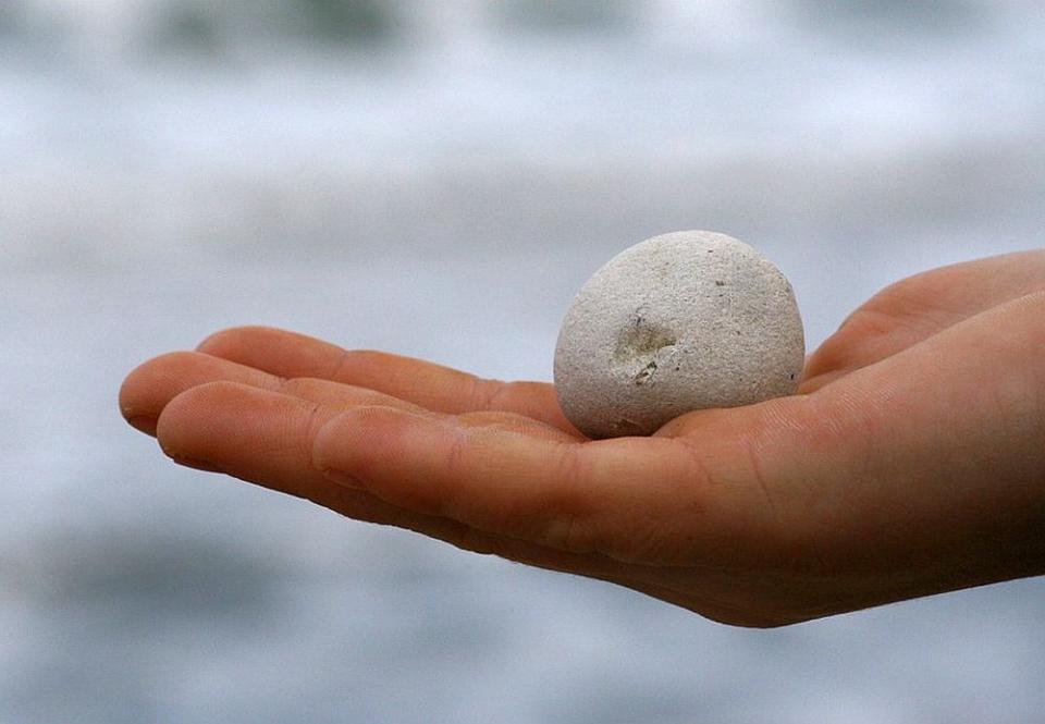 Calculii biliari pot crește cât o minge de golf